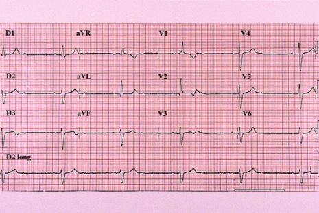 Asthénie et lipothymies par bradycardie chez un sujet âgé   Le ...